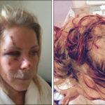 Nanna, fire år efter brutalt AEH-overfald: Kæmper for arabisk indvandring, foragter 'tåkrummende' DF