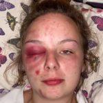 Britisk pige fortæller om grusomme, organiserede overgreb som stadig foregår