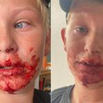 """Husum: 12-årige Mikkel røvet af AEH'ere, """"… slog ham i ansigtet og trampede ham bagefter i hovedet"""""""